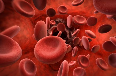 Medicament dezvoltat de Roche pentru tratamentul hemofiliei A, aprobat în UE