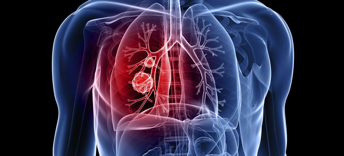 O metodă de tratament pentru hipertensiune arterială pulmonară, dezvoltată de cercetători americani