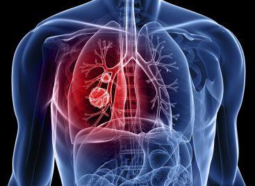 Circa un million de români au astm bronșic, dar mai puțin de jumătate sunt diagnosticați