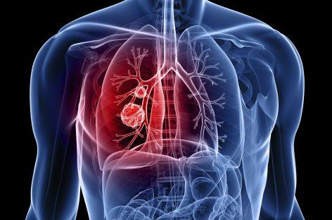 Merck a testat un tratament inovator împotriva cancerului la plămâni, care reduce la jumătate riscul de mortalitate