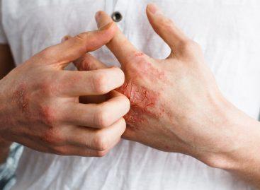 AbbVie se pregătește să lanseze noul tratament risankizumab pentru psoriazis, cu rezultate bune în testele clinice