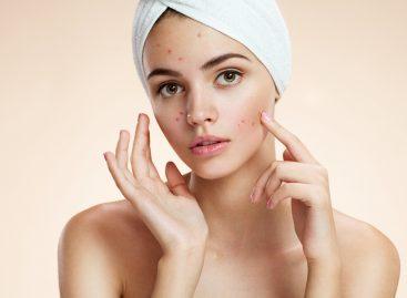Un nou tratament pentru acnee a fost aprobat în SUA