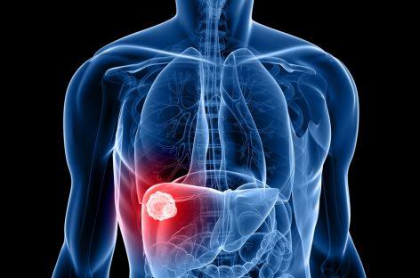 Medicamentul Lenvima, aprobat în UE pentru tratarea cancerului hepatic