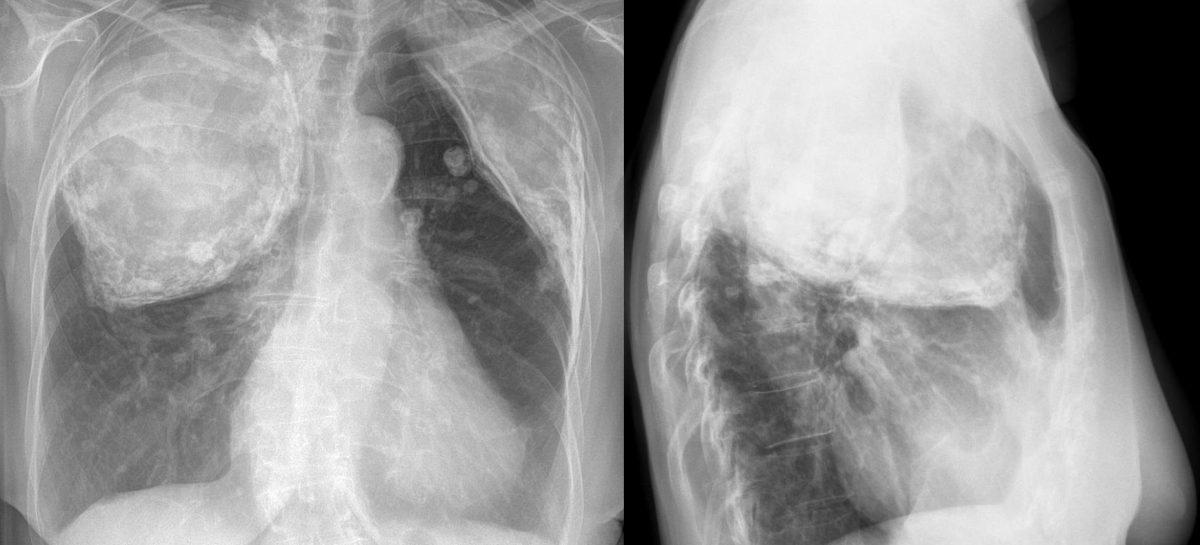 Un nou dispozitiv dezvoltat în SUA ușurează tratamentul tuberculozei prin administrarea constantă a medicamentelor