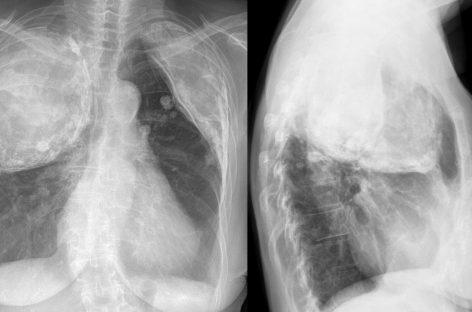 O nouă metodă de tratare a tuberculozei rezistente la medicamente prin îmbunătățirea apărărilor imunitare ale pacienților
