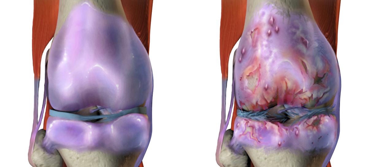 O meodă care ar putea bloca evoluția osteoartritei, descoperită de cercetători canadieni