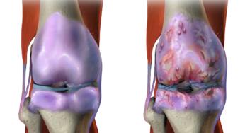 artrite idiopatica juvenila antiinflamatoare pt sold