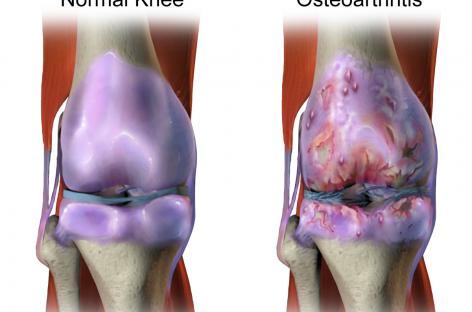 Un derivat al omega-3 este eficient în tratamentul osteoartritei, susțin cercetătorii australieni