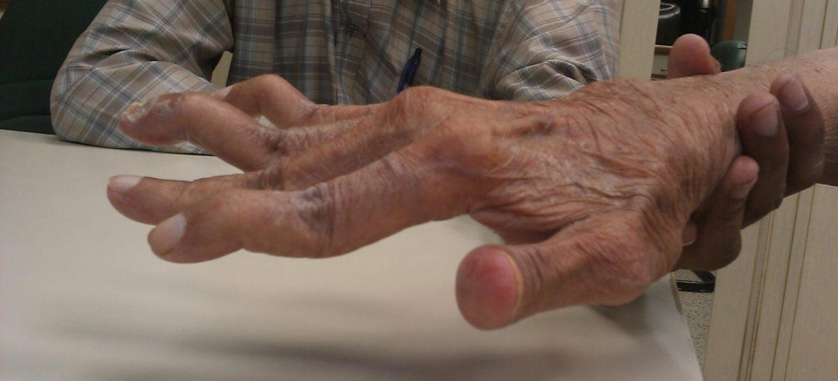 Poliartrita reumatoidă crește riscul de depresie, obezitate și boli cardiovasculare