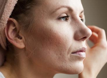 Consumul de cafea reduce riscul apariției rozaceei la femei, arată un studiu realizat în SUA