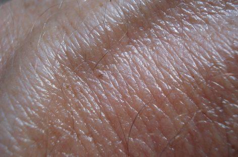 Un medicament dezvoltat de Sanofi și Regeneron pentru cancer de piele, aprobat în SUA