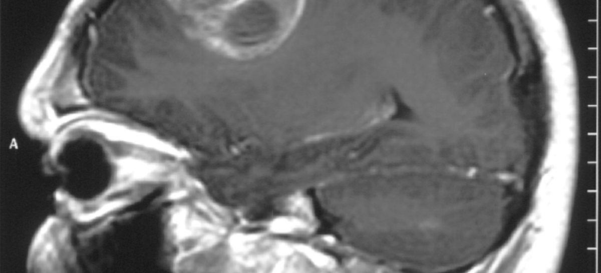 Antihistaminicele s-au dovedit eficiente în tratamentul unei forme agresive de cancer cerebral, arată un studiu realizat în Finlanda