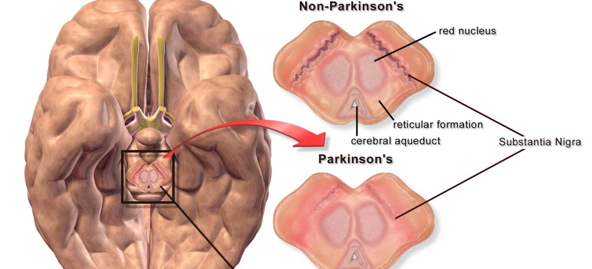 VitaminaB12 identificată ca inhibitor al unei enzime care generează boala Parkinson ereditară