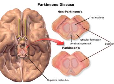 O nouă terapie promiţătoare împotriva bolii Parkinson dezvoltată în SUA