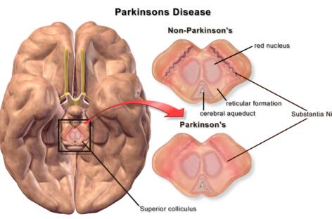 Ceasul biologic ar putea juca un rol în prezicerea riscului pentru boala Parkinson