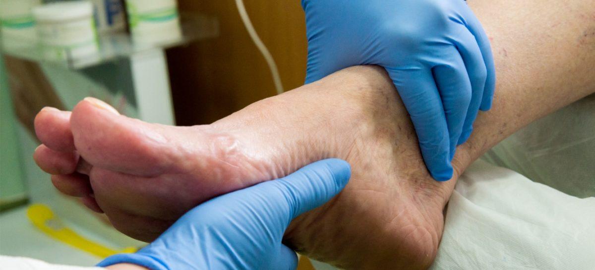 Asociația de Podiatrie: La fiecare 20 de secunde o persoană își pierde un picior din cauza diabetului în lume, deși 8 din 10 amputații pot fi evitate