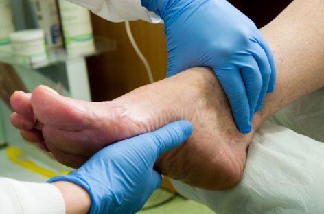 De ce este importantă podiatria pentru pacienții din România. Explicațiile specialiștilor