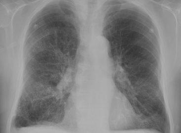 Expunerea la fumul din lemn și ozon crește riscul de BPOC