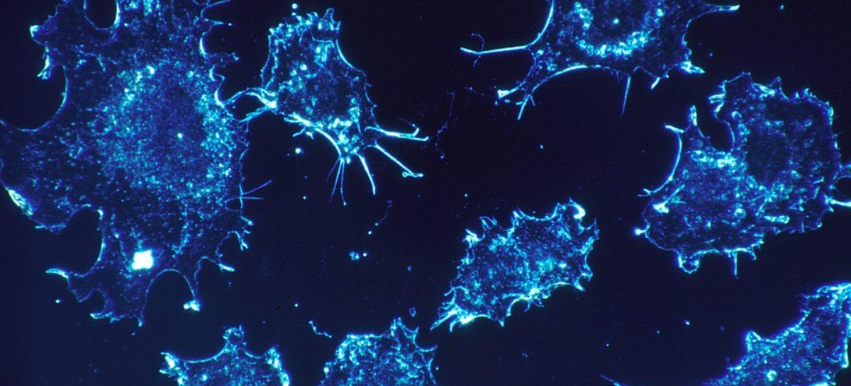 O substanță care împiedică formarea de metastaze la pacienții cu cancer, descoperită de cercetători din Elveția