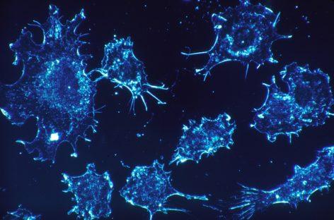 Rezistența cancerului la imunoterapie generată de sabotorii moleculari exportați de tumori care păcălesc sitemul imunitar