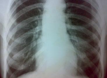 Medici oncologi: Rezultatele terapeutice rămân modeste în cazul cancerului pulmonar; chimio şi radioterapia rămân standard, imunoterapia se adresează unui profil limitat de pacienţi