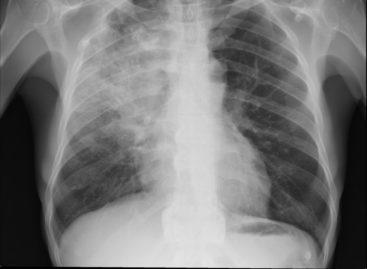 Pneumonia bacteriană asociată cu probleme cardiace mai grave