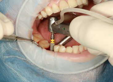 Riscurile implanturilor dentare