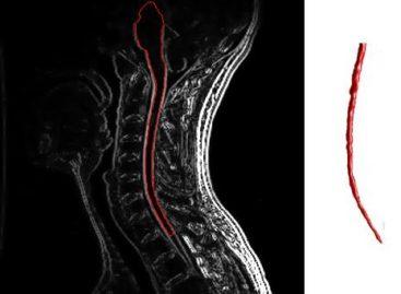 Cauzele profunde ale sclerozei multiple, descoperite de o echipă internațională de cercetători