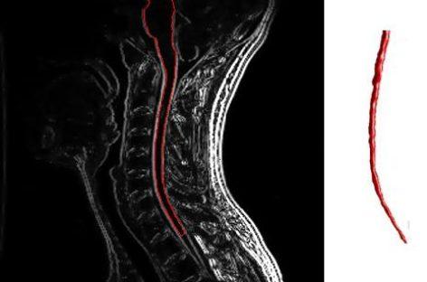 Un nou tratament cu medicamente actuale oferă speranțe pentru vindecarea sclerozei multiple în următorul deceniu