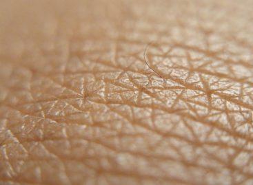 Melanomul poate apărea și pe porțiuni de piele care nu sunt expuse la soare, avertizează medicii americani