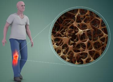 O nouă metodă de tratament poate repara daunele produse de osteoporoză