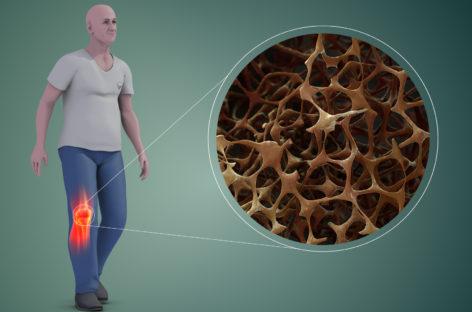 Un tratament pentru osteoporoză dezvoltat de Amgen a fost aprobat în SUA