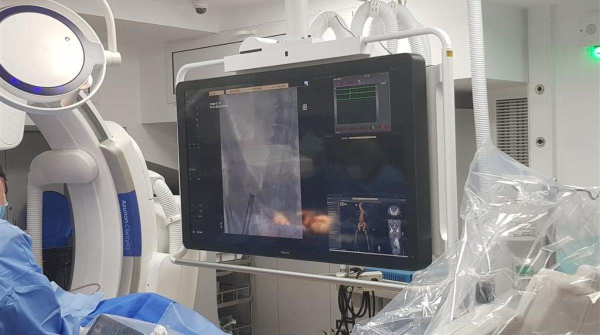 Pacientă cu tromboză venoasă profundă cauzată de sindromul May Thurner, tratată chirurgical și endovascular la Spitalul Sanador din Capitală