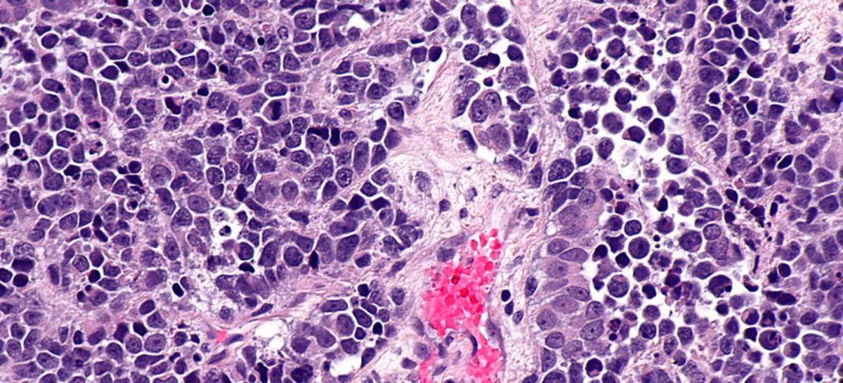 Un medicament experimental dezvoltat de un consorțiu americano-japonez a produs o contracție rapidă a tumorilor de cancer de vezică urinară