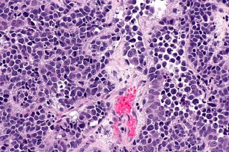 Un nou medicament folosit în asociere cu nivolumab reduce tumorile la unii pacienți cu cancer de vezică urinară