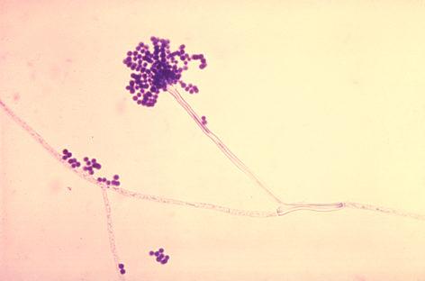 Mecanismul prin care fungii pot afecta sistemul imunitar, descifrat de o echipă internațională de cercetători