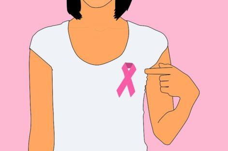 Mastectomia profilactică pentru paciente cu genă pozitivă
