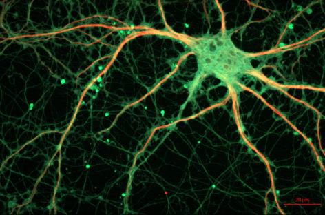 Prozac are ca efect rearanjarea fibrelor nervoase în creier, arată un studiu realizat în SUA