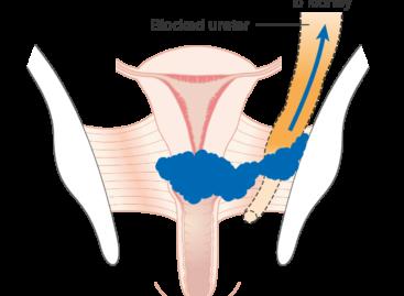 Proiect pilot pentru integrarea screeningului primar HPV în programul național de screening pentru cancerul de col uterin, realizat la Cluj cu fonduri europene