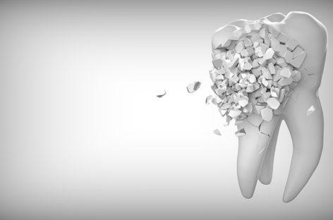 De ce nu reușesc întotdeauna tratamentele endodontice
