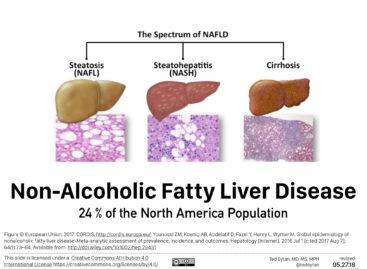 Studiu: Nivelurile ridicate de fructoză din dietă inhibă capacitatea ficatului de a metaboliza în mod corespunzător grăsimea