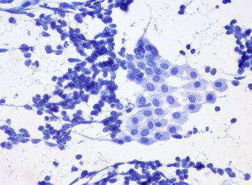 Un nou biomarker asociat cu supraviețuirea și răspândirea tumoriilor poate duce la dezvoltatrea unui tratament împotriva celulelor stem canceroase