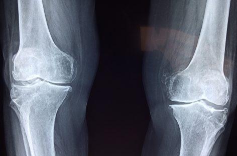 Gonartroza, afecțiunea cronică a genunchiului care poate afecta și persoane de 25 de ani