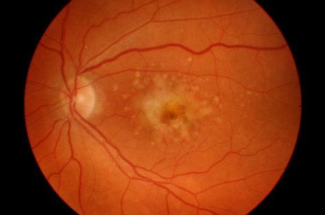 O nouă modalitate pentru dezvoltarea unui tratament pentru retinopatie diabetică, identificată de cercetătorii americani