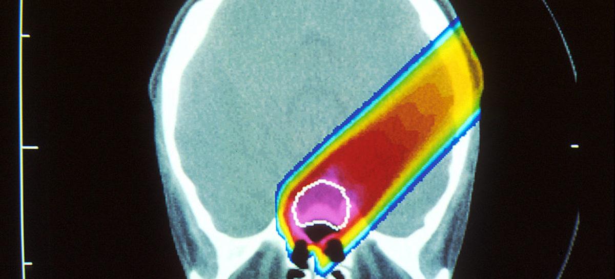 Terapia cu protoni asigură speranțe mai mari de supraviețuire în cazul copiilor cu cancer cerebral