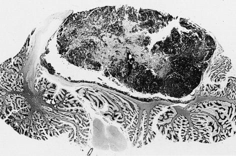 O nouă metodă pentru a bloca evoluția meduloblastomului, identificată de cercetători din SUA