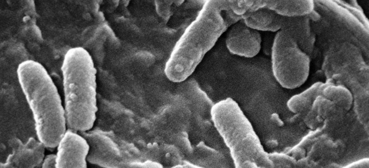 Un nou antimicrobian dual a obținut rezultate pozitive în tratamentul pneumoniei nosocomiale într-un studiu clinic
