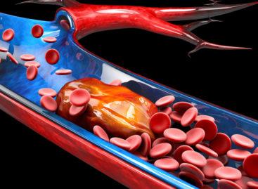 Metodă de identificare și tratare a trombozei venoase profunde