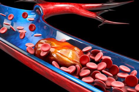 Studiu: Covid-19 declanșează cheaguri de sânge în brațe