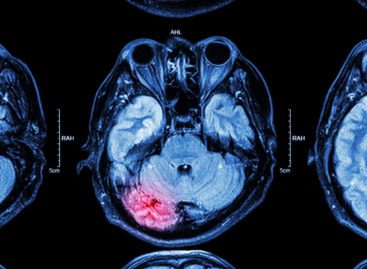 Studiu: Administrarea de acid tranexamic imediat după o lovitură la cap oprește hemoragiile cerebrale și poate salva viața pacienților